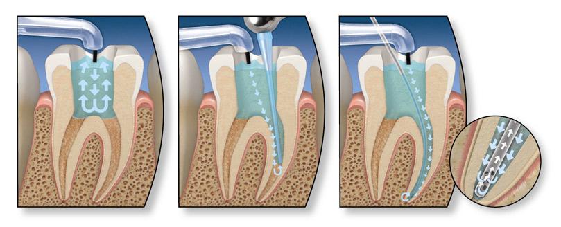 Endodontic-surgery