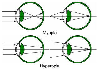 Myopia_and_Hyperopia