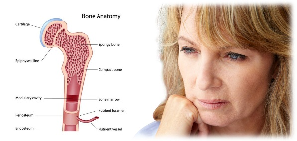 menopausel-bone-loss
