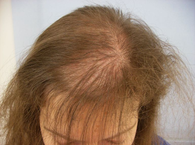 Know about various kinds of hair diseases urmus Choice Image