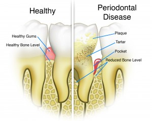 Periodontal Disease_2