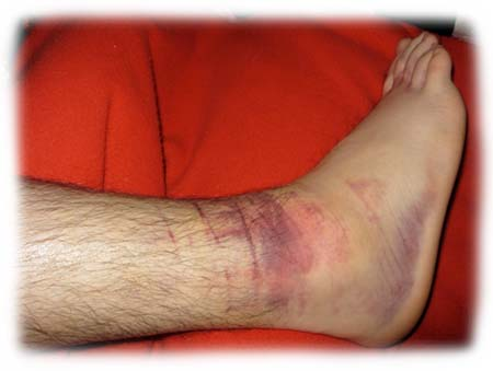Ankle_Swelling