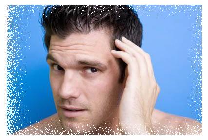 Hair gain Natural Method