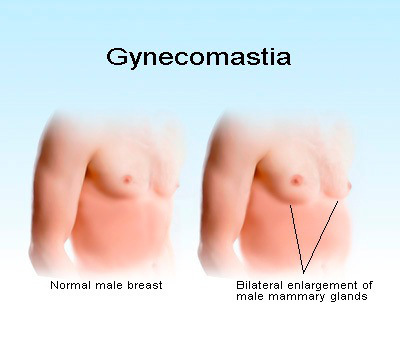 how to tell if you have gynecomastia