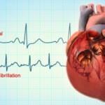 atrial_fibrillation_cardio