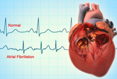 Know an Atrial Fibrillation