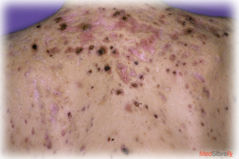 Psoriasis Infectious